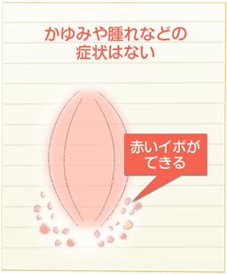 痒み 外 陰部 更年期に陰部のかゆみがでる3つの原因と改善・予防する3つの方法
